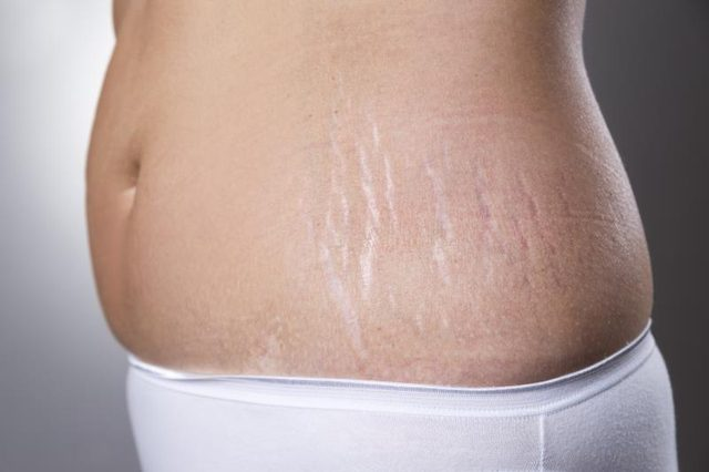 white-stretch-marks